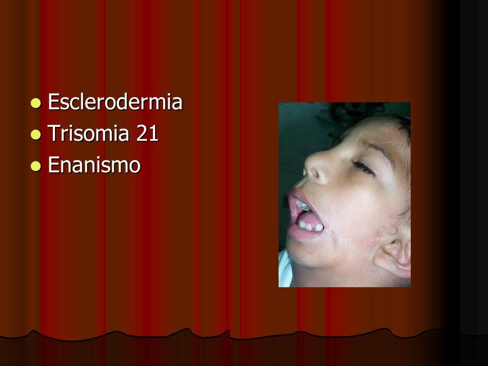 Esclerodermia Esclerodermia Trisomia 21 Trisomia 21 Enanismo Enanismo