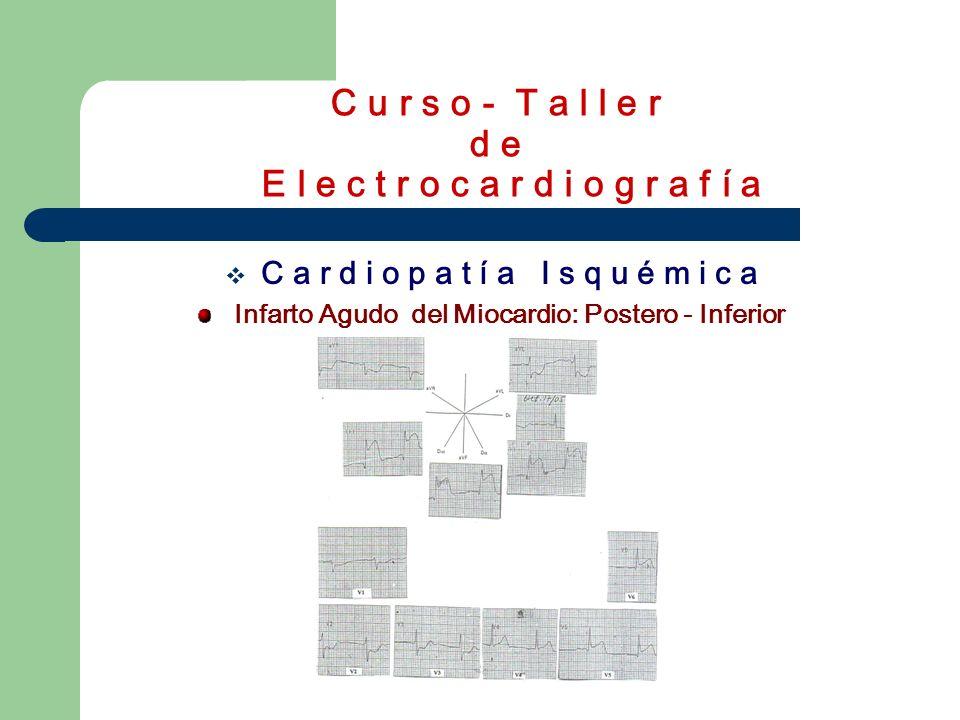 C u r s o - T a l l e r d e E l e c t r o c a r d i o g r a f í a C a r d i o p a t í a I s q u é m i c a Infarto Agudo del Miocardio: Postero - Infer