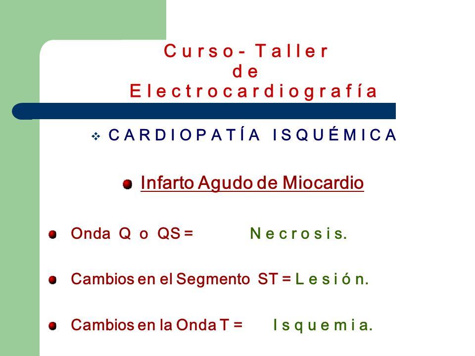 C u r s o - T a l l e r d e E l e c t r o c a r d i o g r a f í a C A R D I O P A T Í A I S Q U É M I C A Isquemia Sub-epicárdica: Onda T negativas, simétricas, picudas y de base estrecha con ST iso-eléctrico.