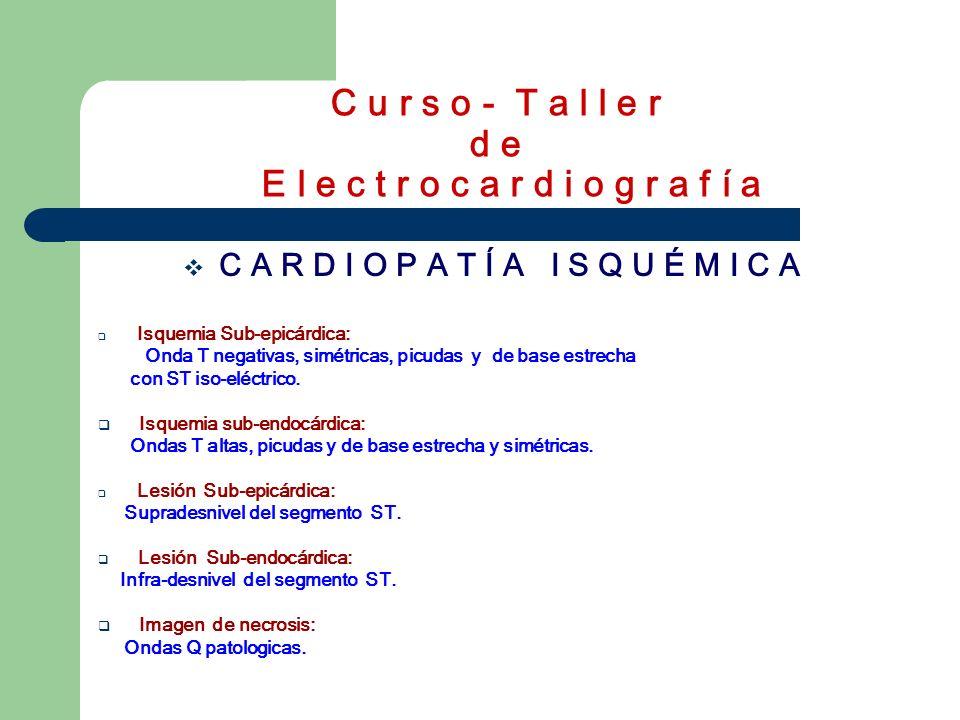 C u r s o - T a l l e r d e E l e c t r o c a r d i o g r a f í a C A R D I O P A T Í A I S Q U É M I C A Isquemia Sub-epicárdica: Onda T negativas, s