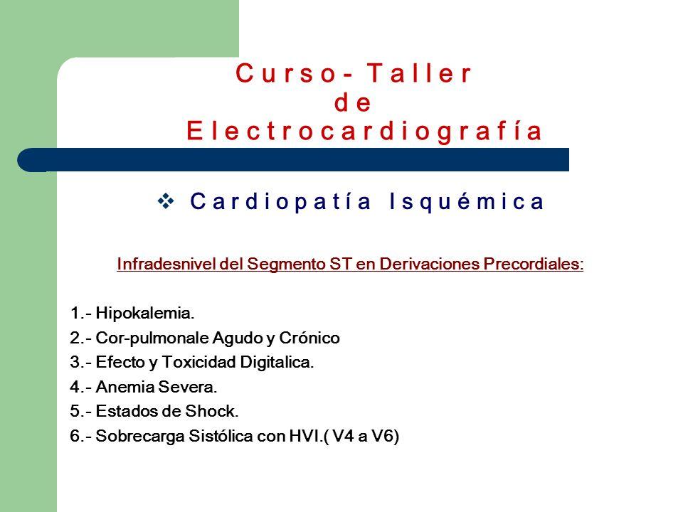 C u r s o - T a l l e r d e E l e c t r o c a r d i o g r a f í a C A R D I O P A T Í A I S Q U É M I C A Infarto Agudo de Miocardio Onda Q o QS = N e c r o s i s.