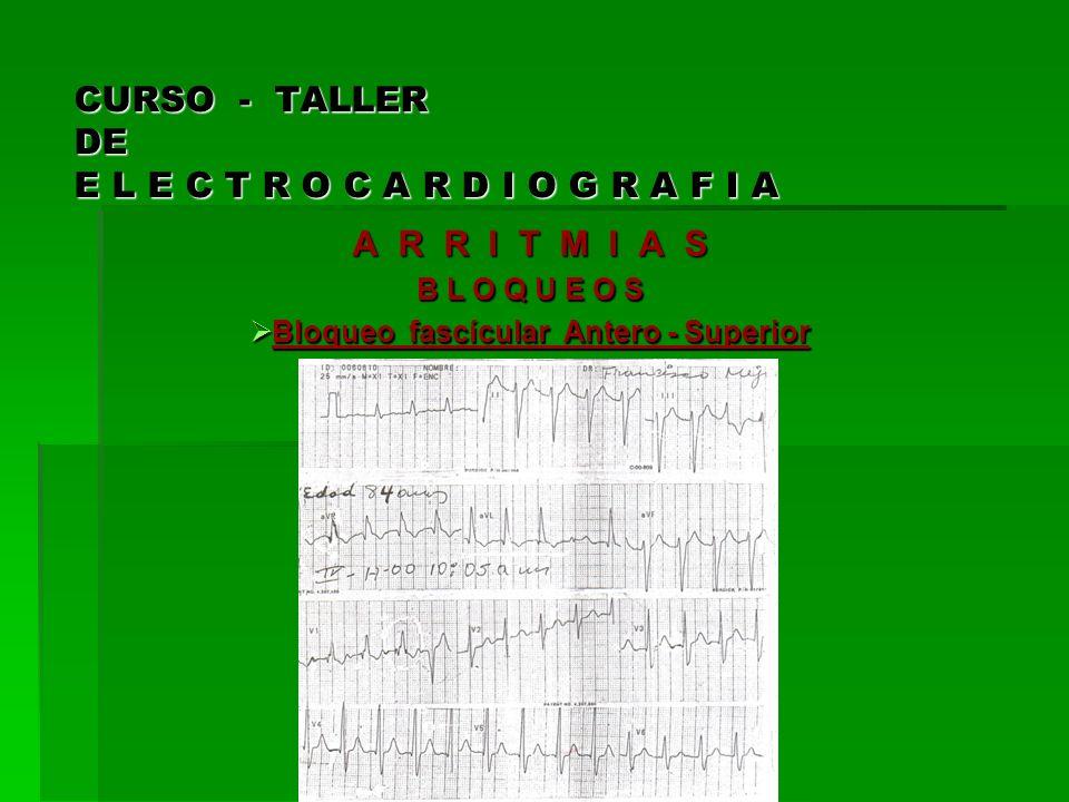 CURSO - TALLER DE E L E C T R O C A R D I O G R A F I A A R R I T M I A S B L O Q U E O S Bloqueo fascícular Antero - Superior Bloqueo fascícular Ante