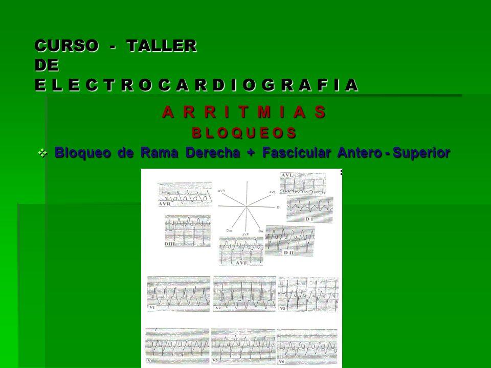 CURSO - TALLER DE E L E C T R O C A R D I O G R A F I A A R R I T M I A S B L O Q U E O S Bloqueo de Rama Derecha + Fascícular Antero - Superior Bloqu