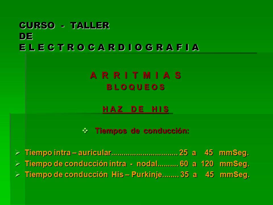 CURSO - TALLER DE E L E C T R O C A R D I O G R A F I A A R R I T M I A S B L O Q U E O S Trastornos de la Conducción Aurículo – Ventricular Trastornos de la Conducción Aurículo – Ventricular CLASIFICACIÓN: CLASIFICACIÓN: Incompletos: Incompletos: Bloqueo A – V de Primer Grado.