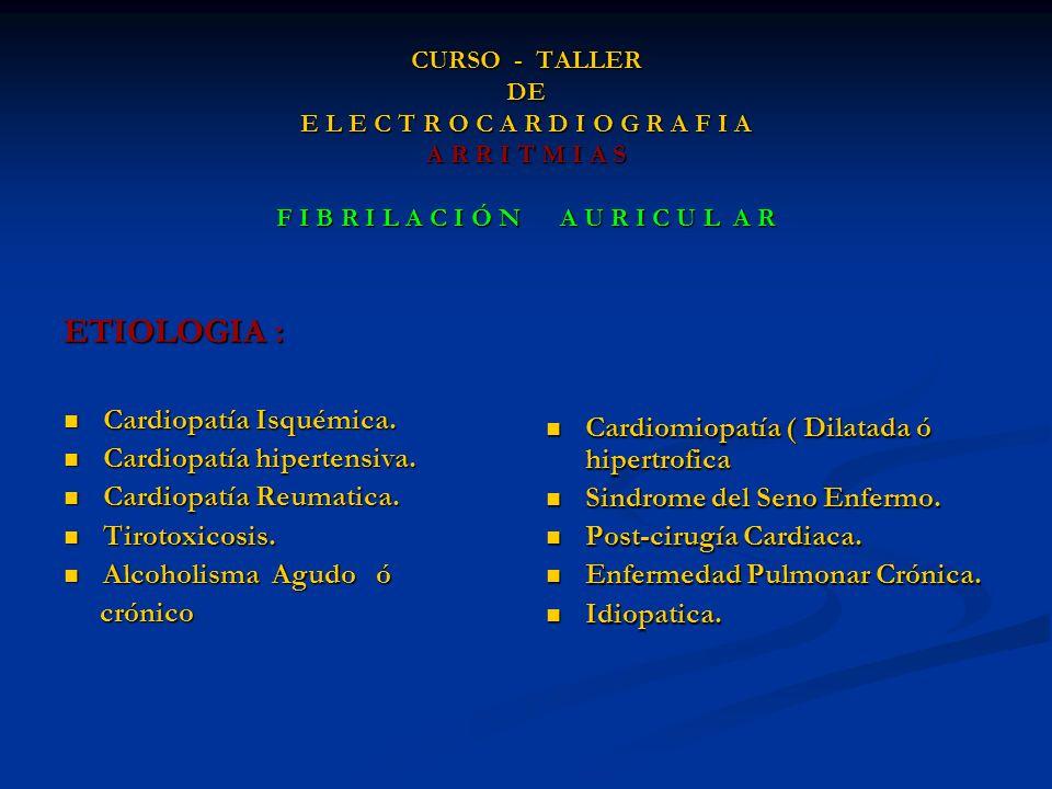 CURSO - TALLER DE E L E C T R O C A R D I O G R A F I A A R R I T M I A S F I B R I L A C I Ó N A U R I C U L A R ETIOLOGIA : Cardiopatía Isquémica. C