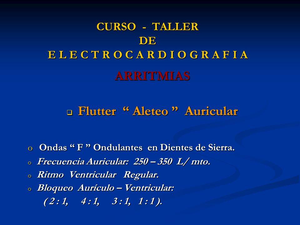 CURSO - TALLER DE E L E C T R O C A R D I O G R A F I A ARRITMIAS Flutter Aleteo Auricular Flutter Aleteo Auricular o Ondas F Ondulantes en Dientes de