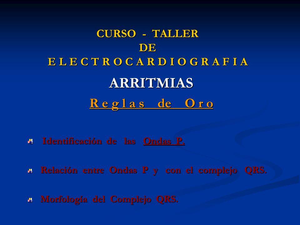 CURSO - TALLER DE E L E C T R O C A R D I O G R A F I A ARRITMIAS R e g l a s de O r o Identificación de las Ondas P. Identificación de las Ondas P. R