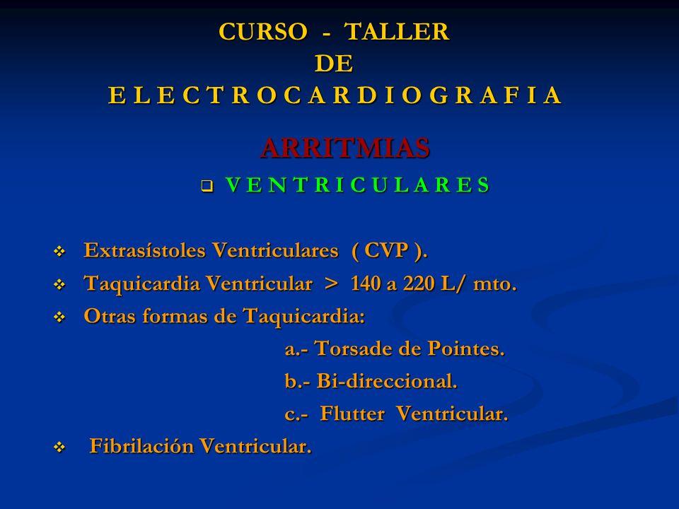 CURSO - TALLER DE E L E C T R O C A R D I O G R A F I A ARRITMIAS V E N T R I C U L A R E S V E N T R I C U L A R E S Extrasístoles Ventriculares ( CV