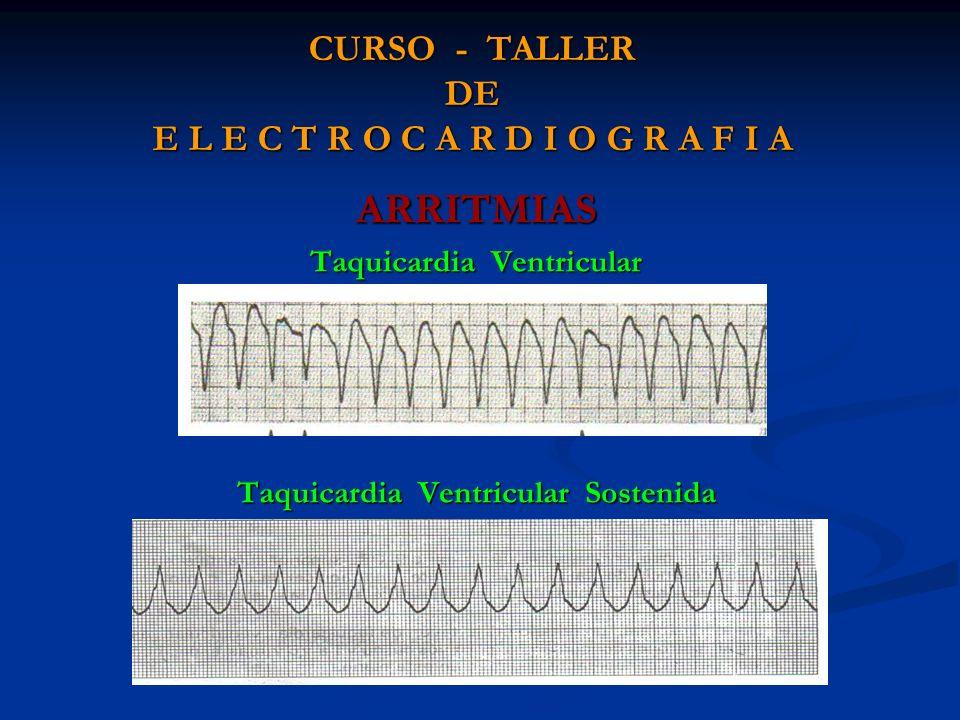 CURSO - TALLER DE E L E C T R O C A R D I O G R A F I A ARRITMIAS Taquicardia Ventricular Taquicardia Ventricular Sostenida