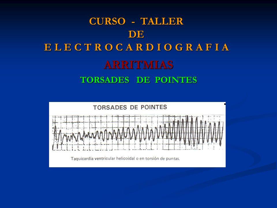 CURSO - TALLER DE E L E C T R O C A R D I O G R A F I A ARRITMIAS TORSADES DE POINTES