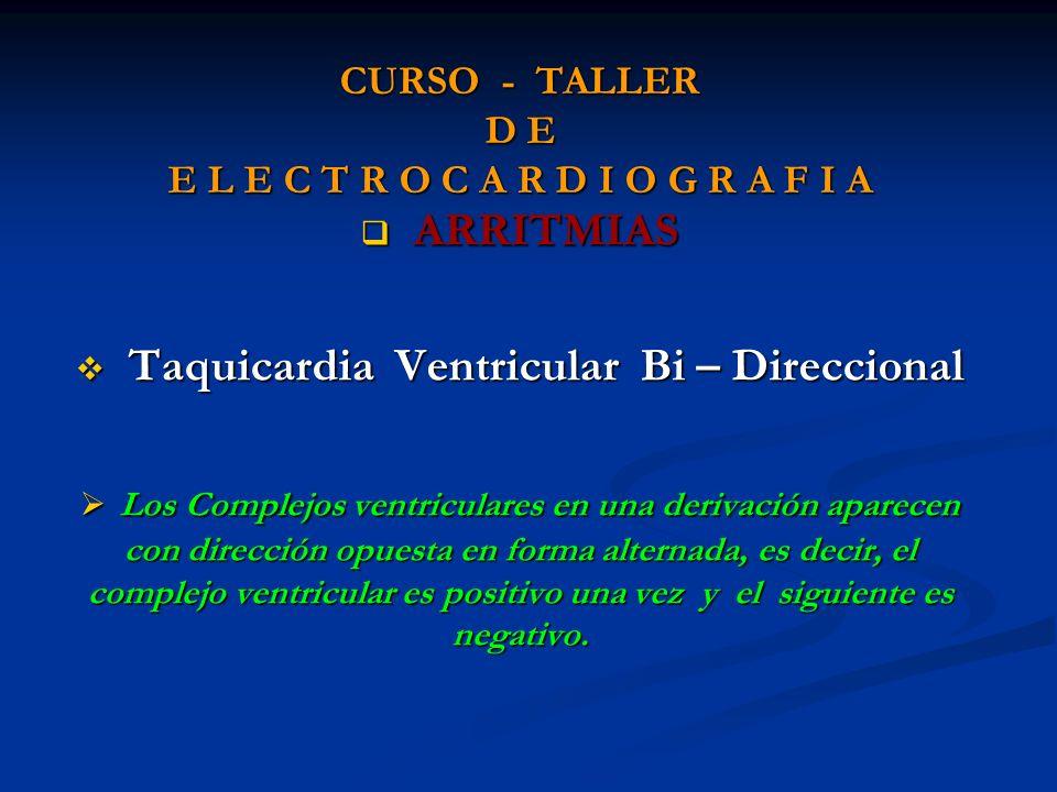 CURSO - TALLER D E E L E C T R O C A R D I O G R A F I A ARRITMIAS ARRITMIAS Taquicardia Ventricular Bi – Direccional Taquicardia Ventricular Bi – Dir