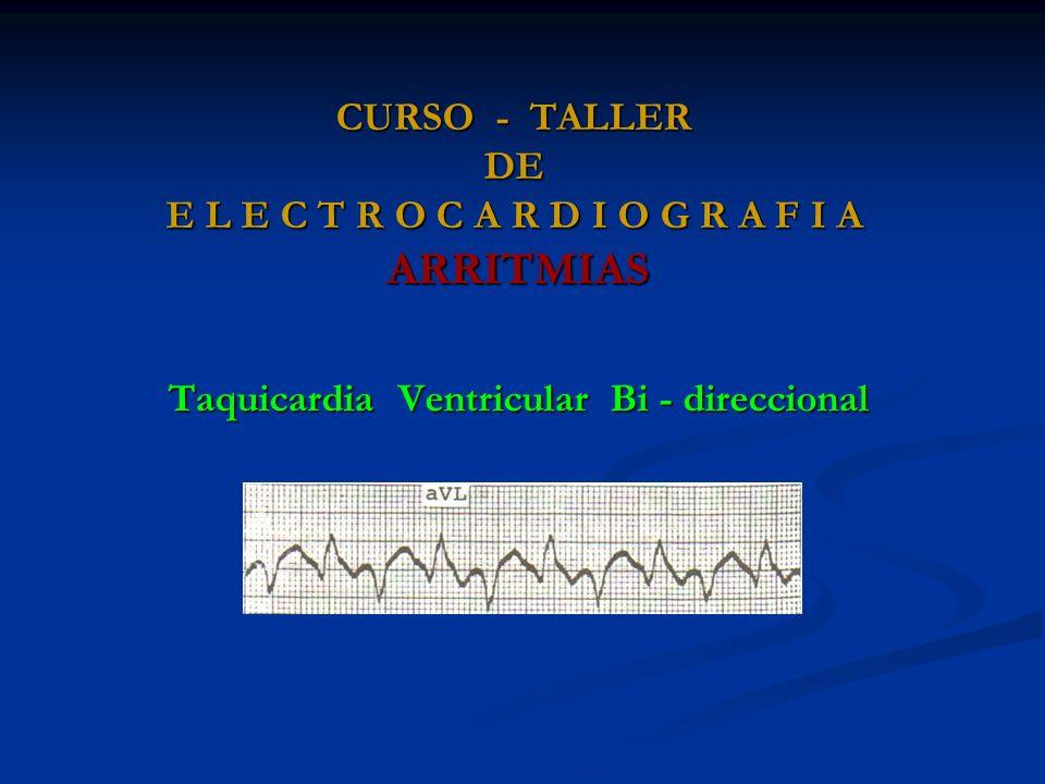 CURSO - TALLER DE E L E C T R O C A R D I O G R A F I A ARRITMIAS Taquicardia Ventricular Bi - direccional