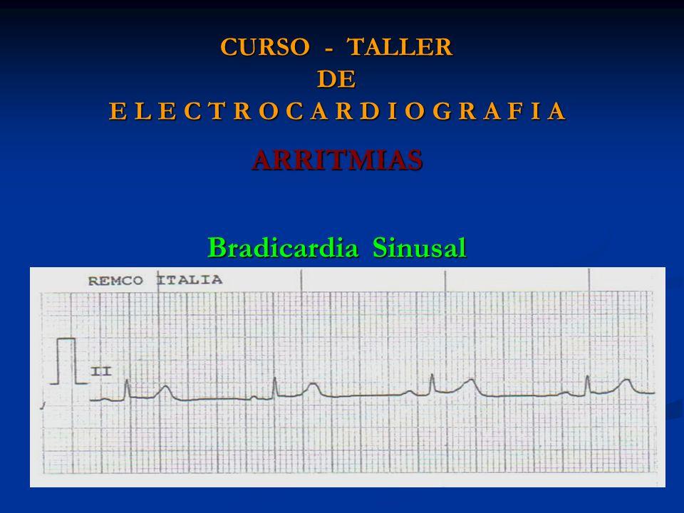 CURSO - TALLER DE E L E C T R O C A R D I O G R A F I A ARRITMIAS Bradicardia Sinusal