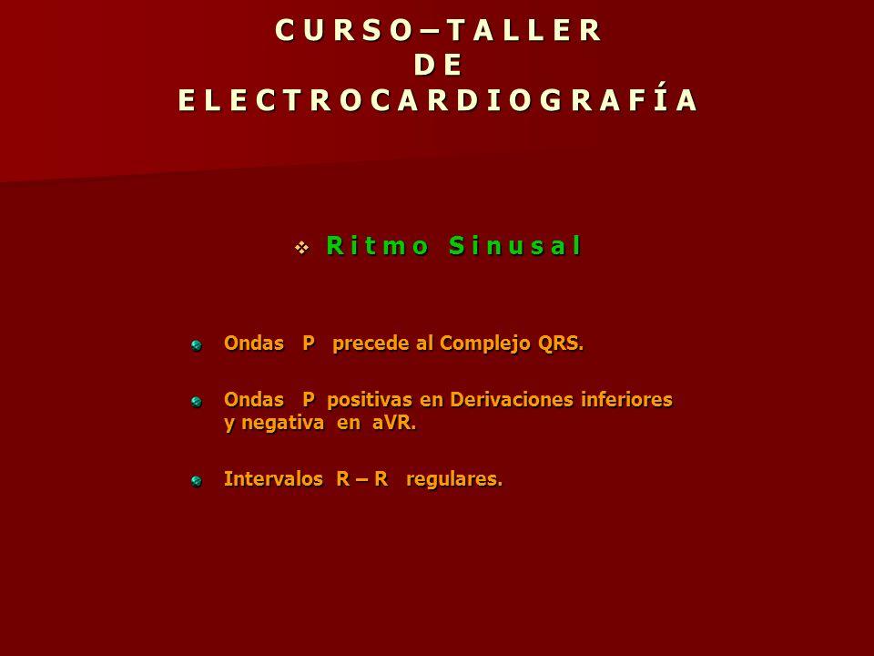 C U R S O – T A L L E R D E E L E C T R O C A R D I O G R A F Í A R i t m o S i n u s a l R i t m o S i n u s a l Ondas P precede al Complejo QRS. Ond