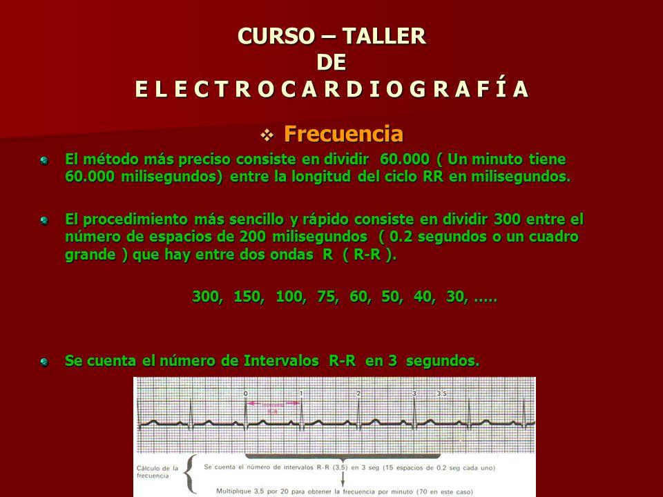 CURSO – TALLER DE E L E C T R O C A R D I O G R A F Í A Frecuencia Frecuencia El método más preciso consiste en dividir 60.000 ( Un minuto tiene 60.00