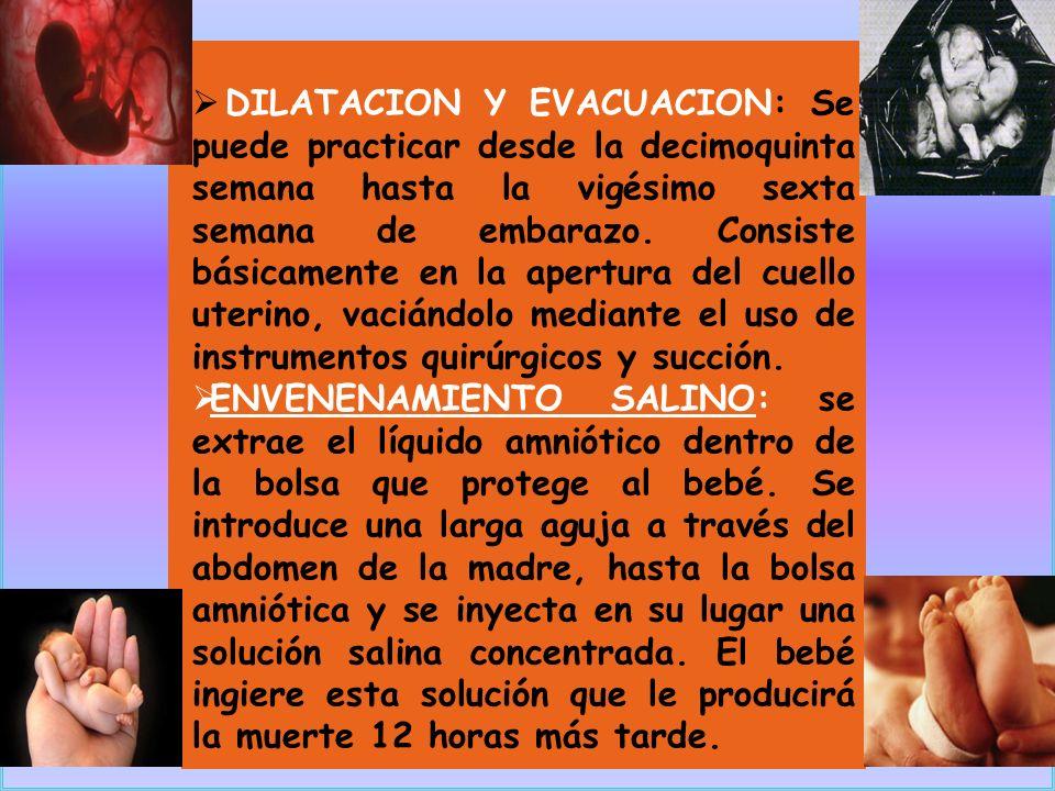 DILATACION Y EVACUACION: Se puede practicar desde la decimoquinta semana hasta la vigésimo sexta semana de embarazo. Consiste básicamente en la apertu