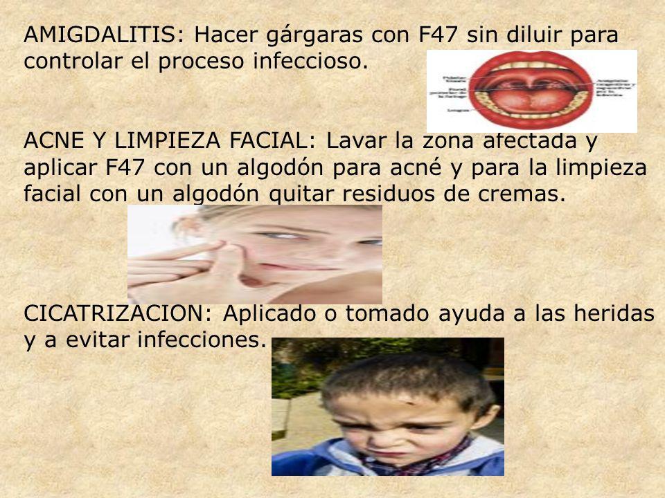 AMIGDALITIS: Hacer gárgaras con F47 sin diluir para controlar el proceso infeccioso. ACNE Y LIMPIEZA FACIAL: Lavar la zona afectada y aplicar F47 con