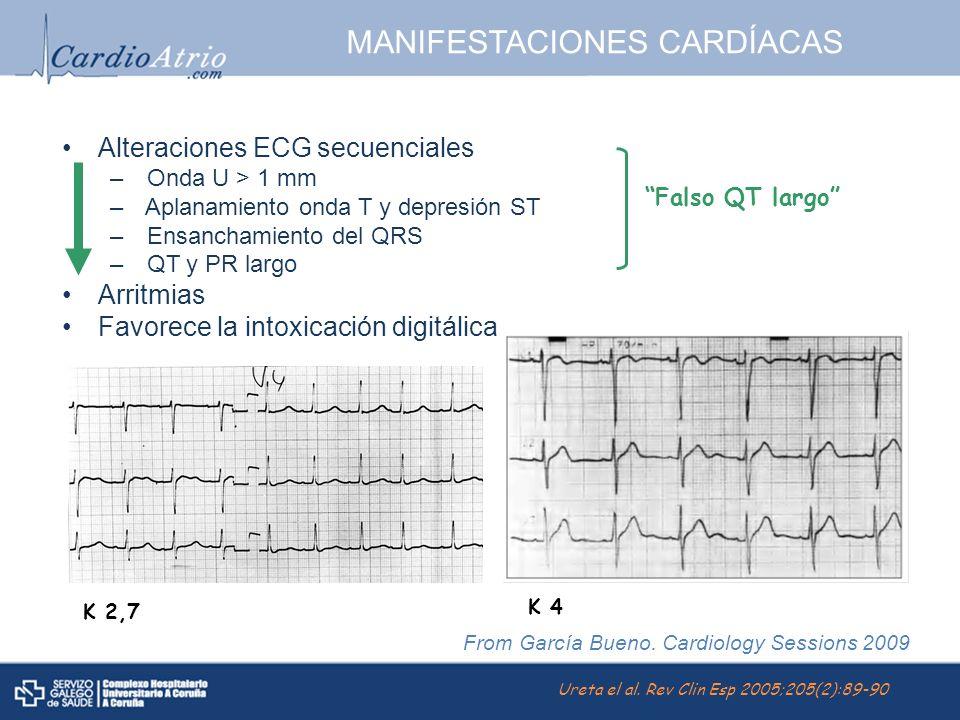 MANIFESTACIONES CARDÍACAS Alteraciones ECG secuenciales – Onda U > 1 mm – Aplanamiento onda T y depresión ST – Ensanchamiento del QRS – QT y PR largo