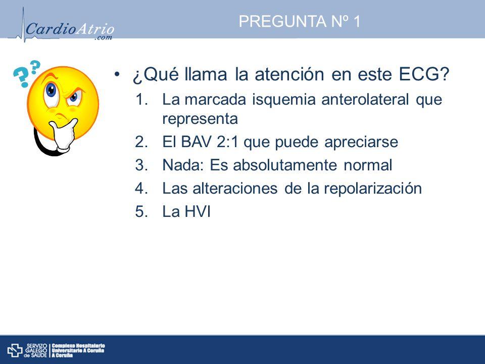 PREGUNTA Nº 1 ¿Qué llama la atención en este ECG? 1.La marcada isquemia anterolateral que representa 2.El BAV 2:1 que puede apreciarse 3.Nada: Es abso