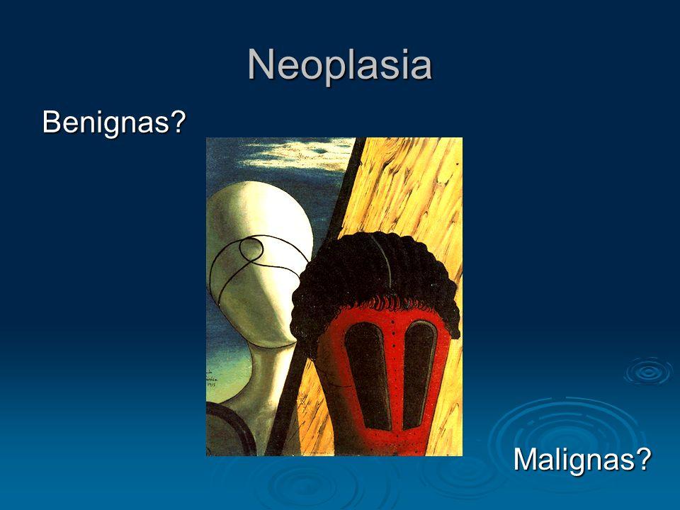 Neoplasia Benignas? Malignas?