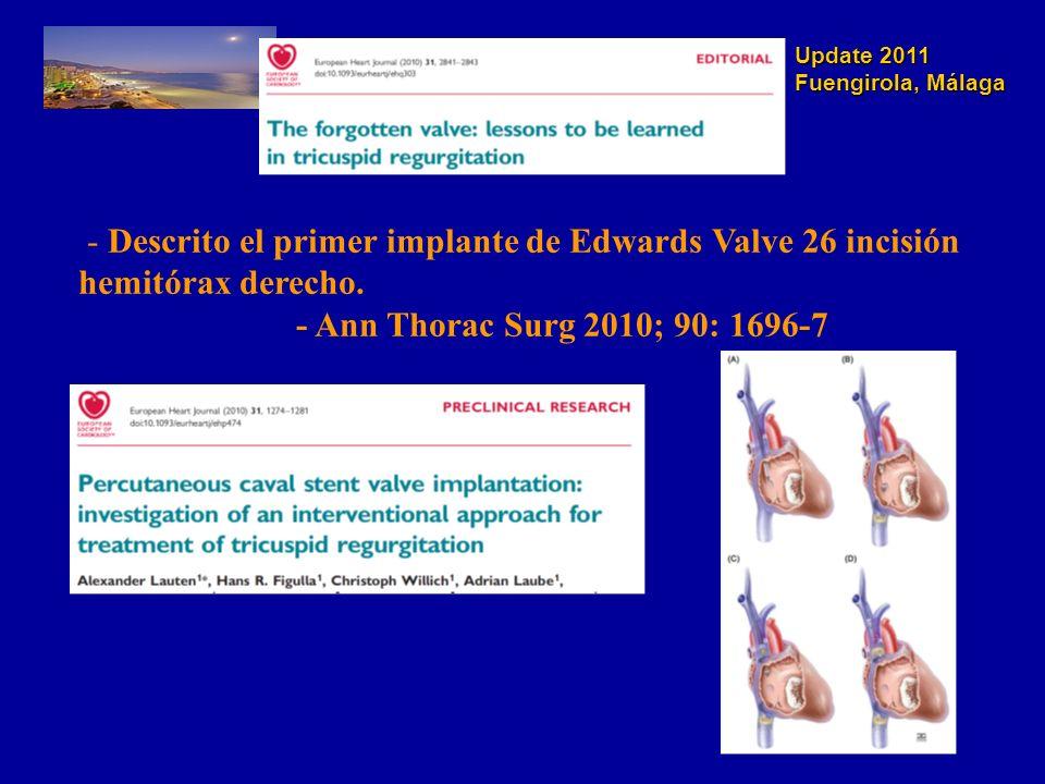 Update 2011 Fuengirola, Málaga - Descrito el primer implante de Edwards Valve 26 incisión hemitórax derecho. - Ann Thorac Surg 2010; 90: 1696-7