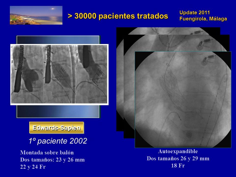 Update 2011 Fuengirola, Málaga Edwards-SapienEdwards-Sapien CoreValveCoreValve 1º paciente 20021º paciente 2005 Autoexpandible Dos tamaños 26 y 29 mm