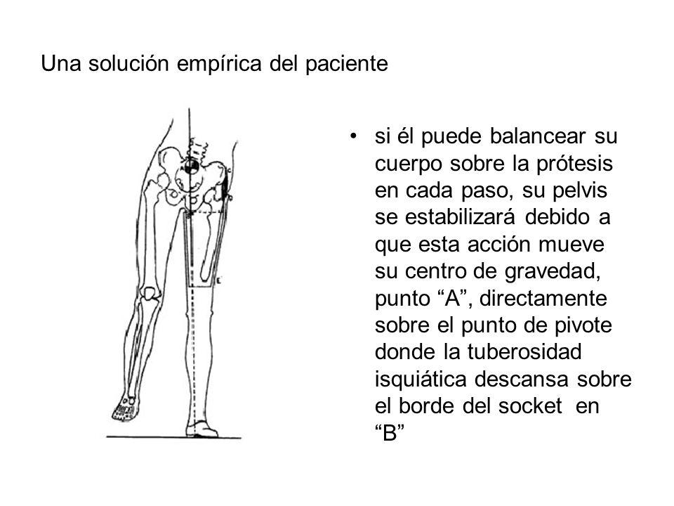 Una solución empírica del paciente si él puede balancear su cuerpo sobre la prótesis en cada paso, su pelvis se estabilizará debido a que esta acción