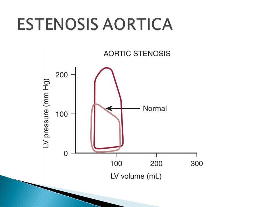 Evitar hipotensión e hipovolemia Mantener FC, SVR normal y ritmo sinusal Evitar depresión miocardica con anestesia general Mantener volumen intravascular y retorno venoso