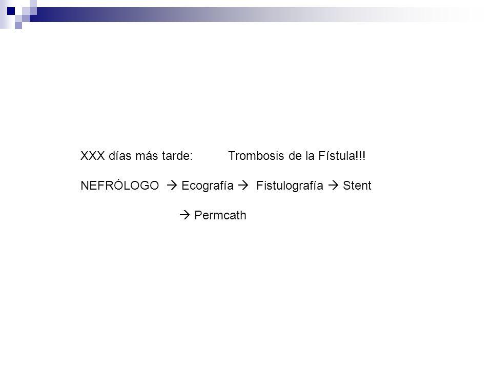 XXX días más tarde: Trombosis de la Fístula!!! NEFRÓLOGO Ecografía Fistulografía Stent Permcath
