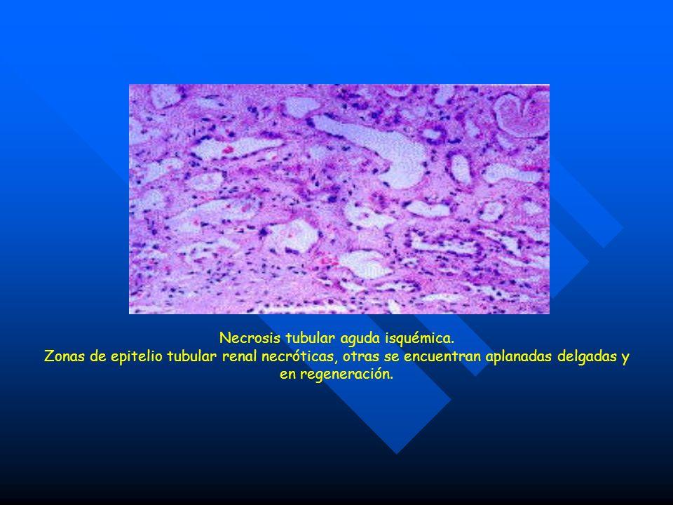 Necrosis tubular aguda isquémica. Zonas de epitelio tubular renal necróticas, otras se encuentran aplanadas delgadas y en regeneración.
