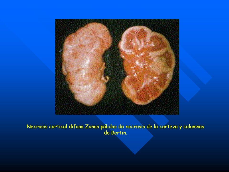 Necrosis cortical difusa Zonas pálidas de necrosis de la corteza y columnas de Bertin.