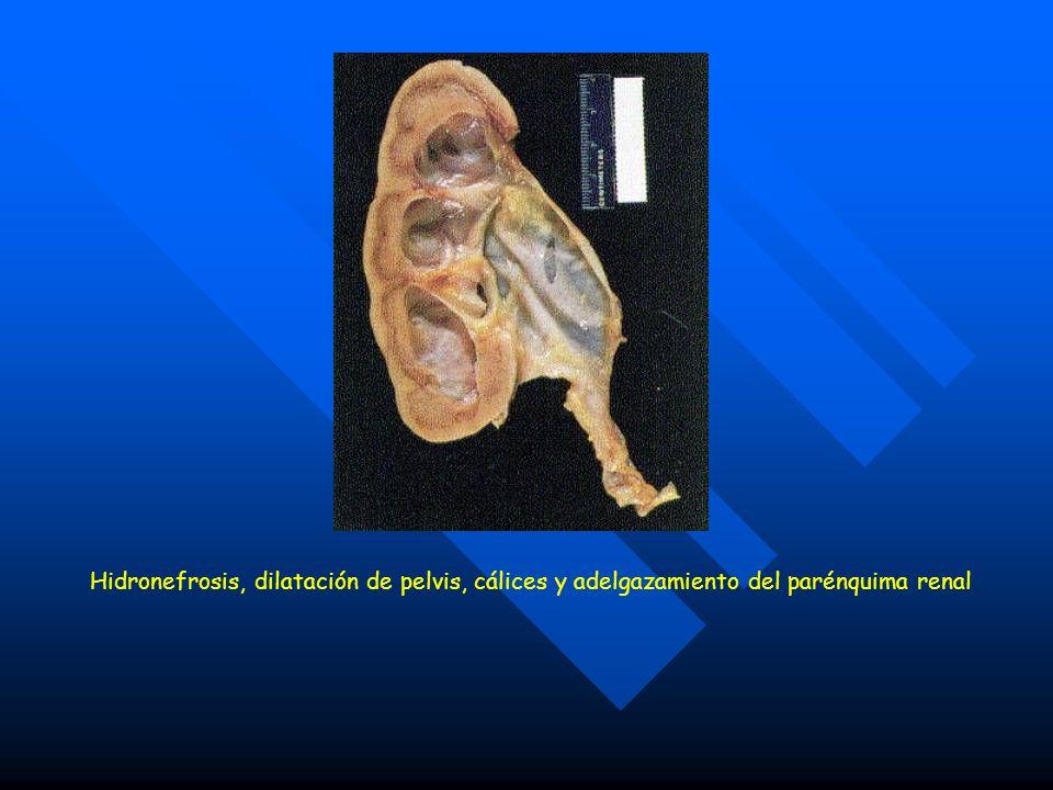 Hidronefrosis, dilatación de pelvis, cálices y adelgazamiento del parénquima renal
