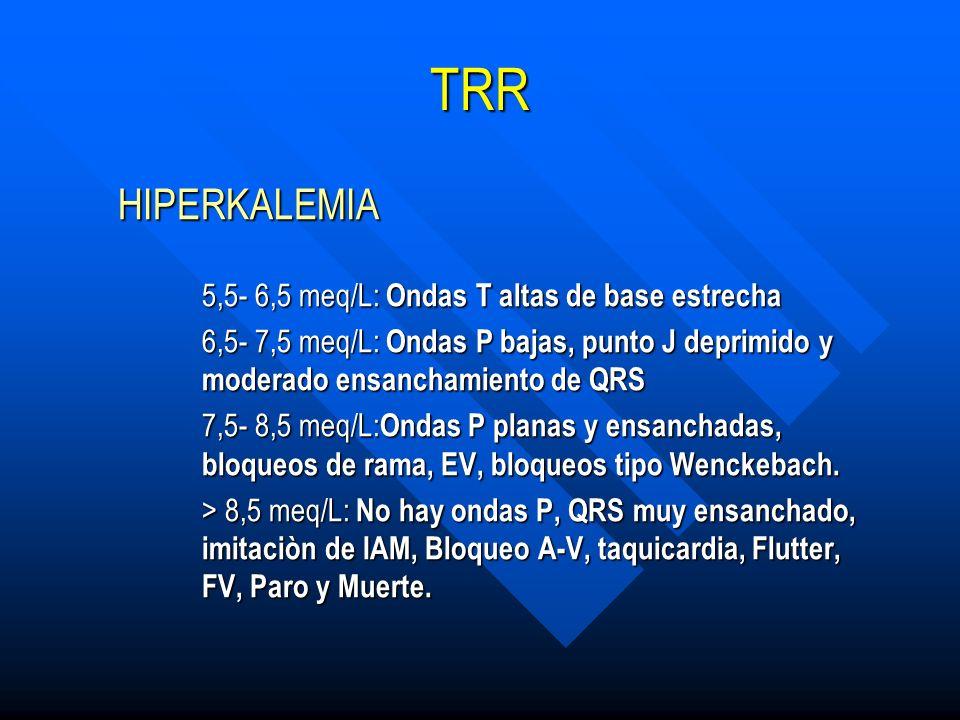 TRR HIPERKALEMIA HIPERKALEMIA 5,5- 6,5 meq/L: Ondas T altas de base estrecha 5,5- 6,5 meq/L: Ondas T altas de base estrecha 6,5- 7,5 meq/L: Ondas P ba