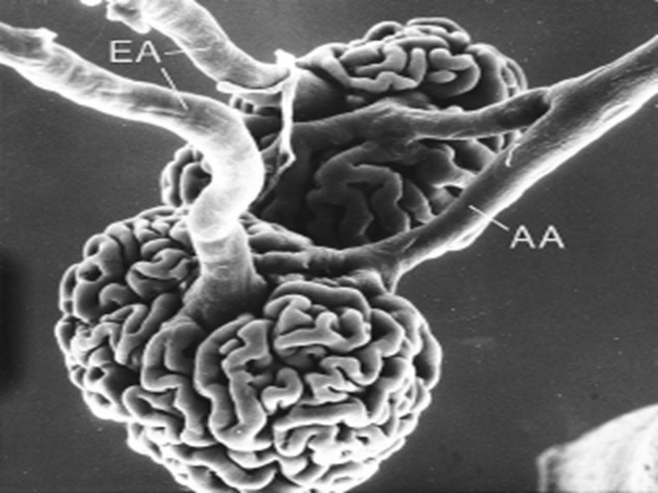 IRA-NTA EXPIRIMENTALES EXPIRIMENTALES –Bloqueador de Rc de Serotina »Serot Aum en isquemia »Vasoconstrictor » Ketanserin –Alfa-hormona estimulante de melanocitos »citoquina antiinflamatoria »Inhibe migraciòn de neutrofilos