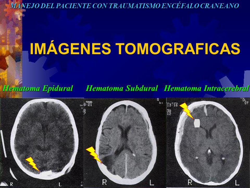 IMÁGENES TOMOGRAFICAS MANEJO DEL PACIENTE CON TRAUMATISMO ENCÉFALO CRANEANO Hematoma Epidural Hematoma Subdural Hematoma Intracerebral
