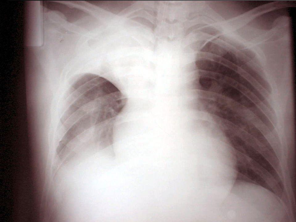 MECANISMO: SHUNT –Sepsis –Falla Hepática –Malformaciones arterio-venosas –Shunt cardíaco derecha izquierda INSUFICIENCIA RESPIRATORIA AGUDA