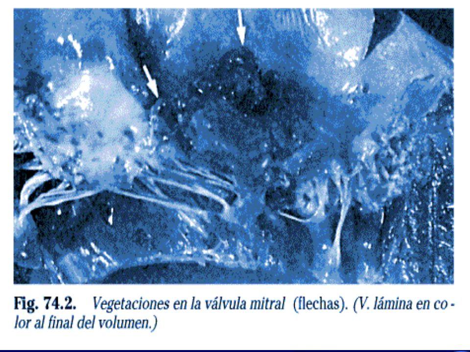 FACTORES DE RIESGO Injection drug use –Highest risk factor in patients < 40 years of age Valvulas Cardiacas Protesicas –Endocarditis de valvula protesica comprometenun pequeño pero importante grupo de casos de IE –Mas de 100,000 valvulas cardiacas son implantadas anualmente en los EEUU –IE develops in 1 to 4 % of valve recipients during the 1st year following valve replacement, and in approximately 1 percent per year thereafter