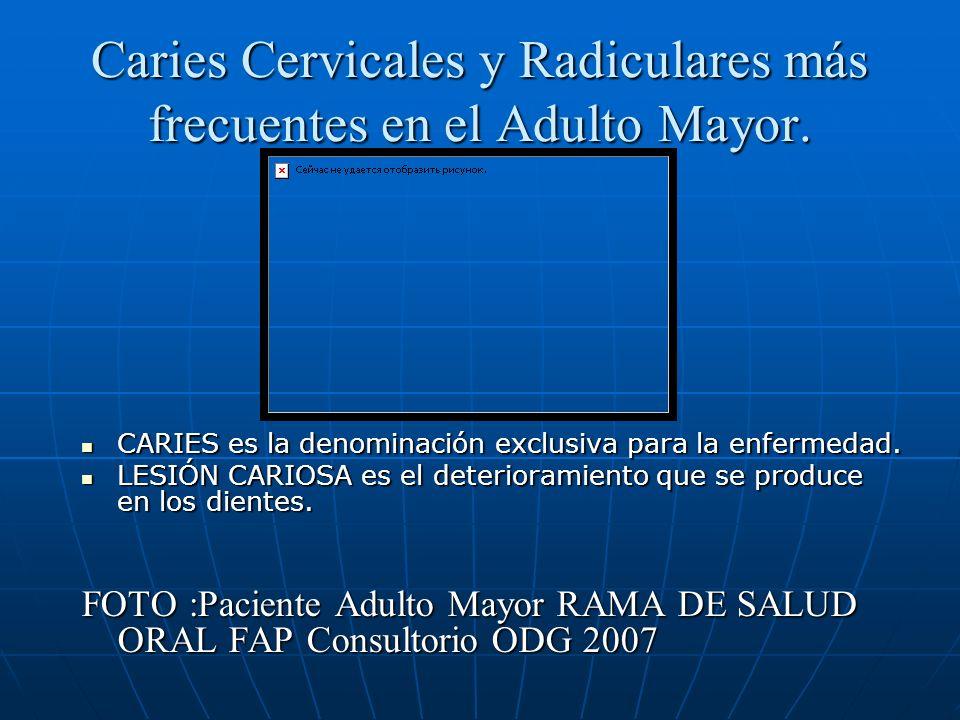 Caries Cervicales y Radiculares más frecuentes en el Adulto Mayor. CARIES es la denominación exclusiva para la enfermedad. CARIES es la denominación e