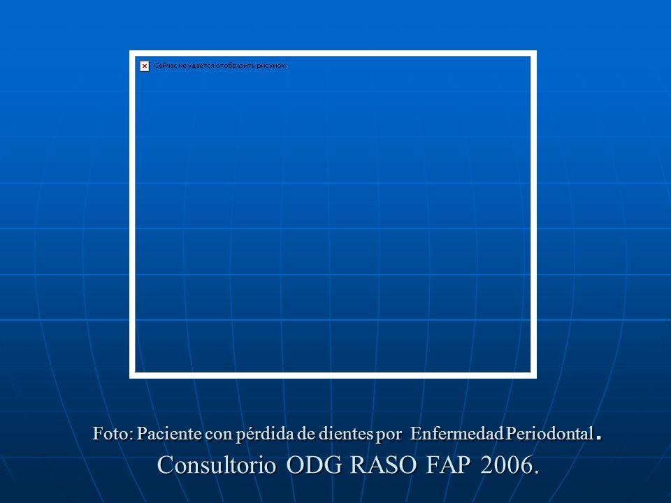 Foto: Paciente con pérdida de dientes por Enfermedad Periodontal. Consultorio ODG RASO FAP 2006.