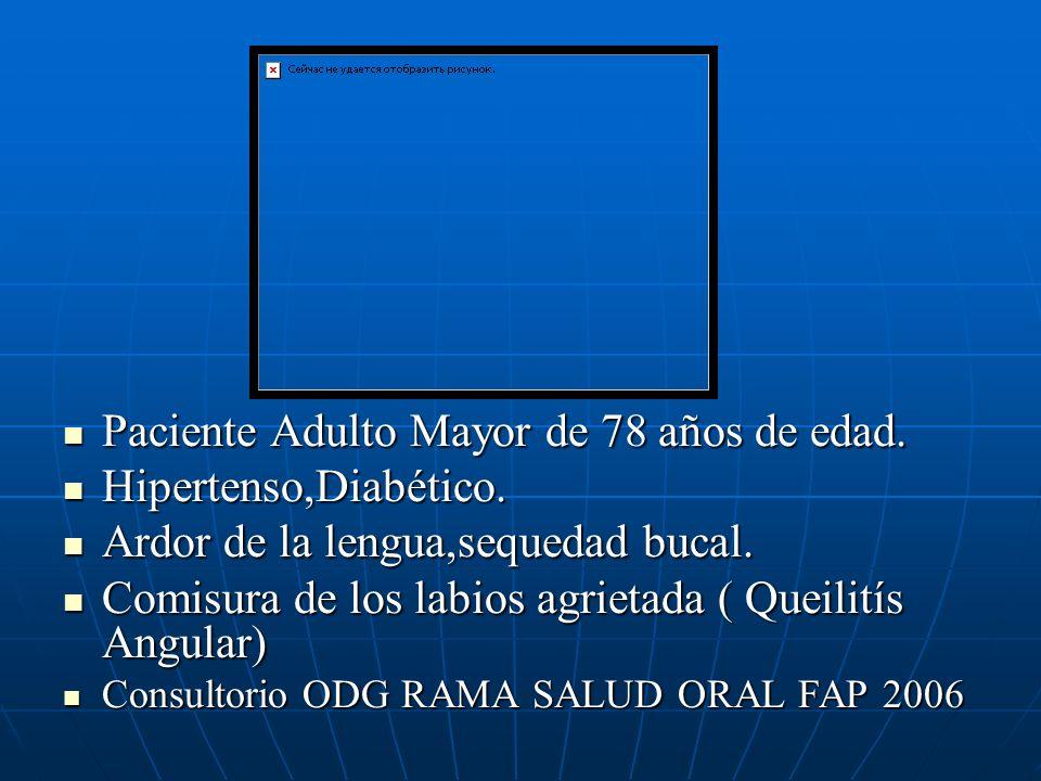 Paciente Adulto Mayor de 78 años de edad. Paciente Adulto Mayor de 78 años de edad. Hipertenso,Diabético. Hipertenso,Diabético. Ardor de la lengua,seq