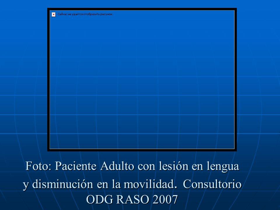Foto: Paciente Adulto con lesión en lengua y disminución en la movilidad. Consultorio ODG RASO 2007