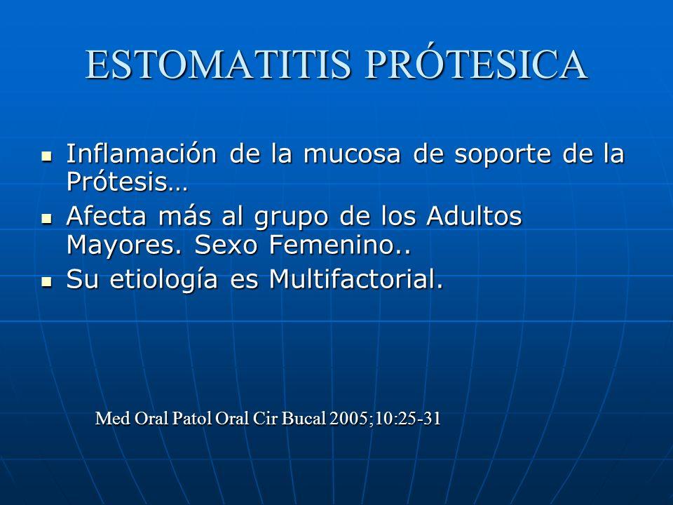 ESTOMATITIS PRÓTESICA Inflamación de la mucosa de soporte de la Prótesis… Inflamación de la mucosa de soporte de la Prótesis… Afecta más al grupo de los Adultos Mayores.