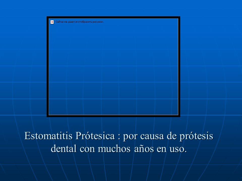 Estomatitis Prótesica : por causa de prótesis dental con muchos años en uso.