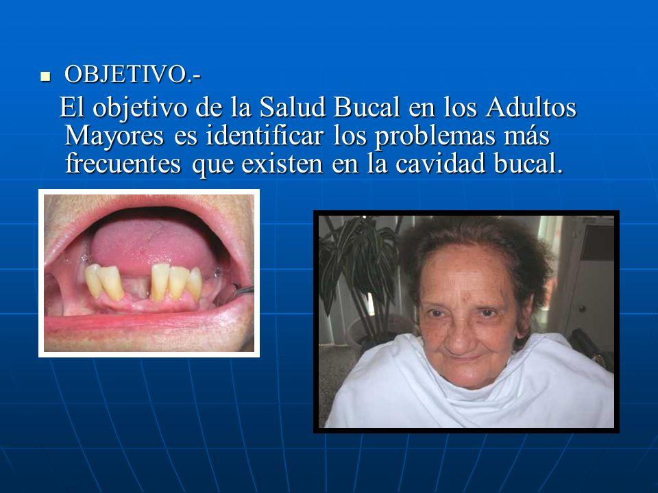 OBJETIVO.- OBJETIVO.- El objetivo de la Salud Bucal en los Adultos Mayores es identificar los problemas más frecuentes que existen en la cavidad bucal.