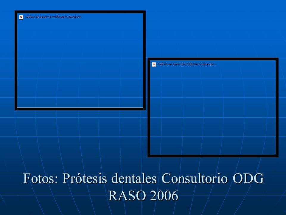 Fotos: Prótesis dentales Consultorio ODG RASO 2006