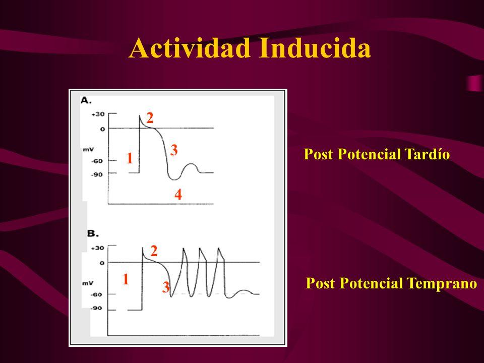 Actividad Inducida Post Potencial Tardío Post Potencial Temprano 1 2 3 4 1 2 3