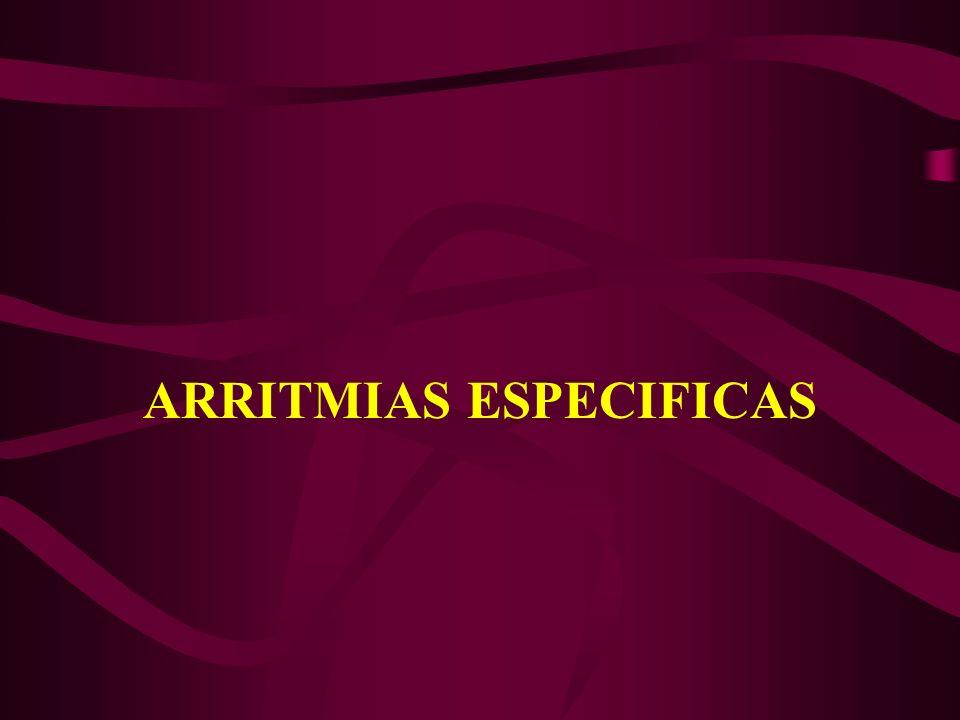 ARRITMIAS ESPECIFICAS