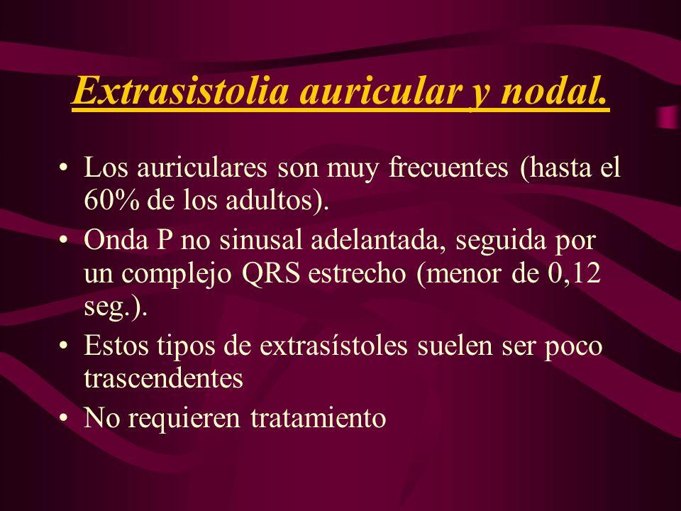 Extrasistolia auricular y nodal. Los auriculares son muy frecuentes (hasta el 60% de los adultos). Onda P no sinusal adelantada, seguida por un comple