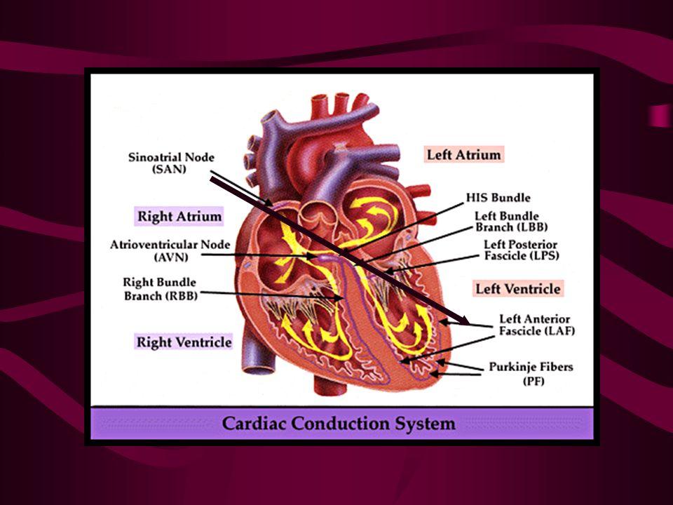 EKG : ONDAS Y COMPLEJOS