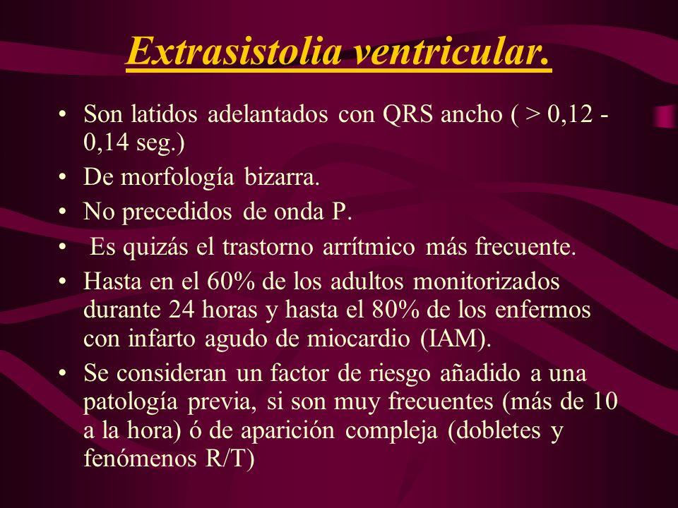 Extrasistolia ventricular. Son latidos adelantados con QRS ancho ( > 0,12 - 0,14 seg.) De morfología bizarra. No precedidos de onda P. Es quizás el tr